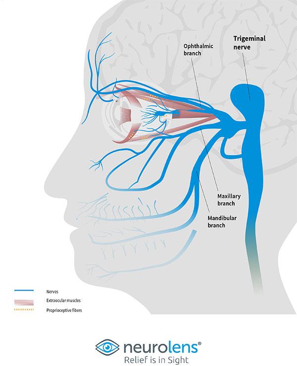 Neurolense Trigeminal Nerve Graphic